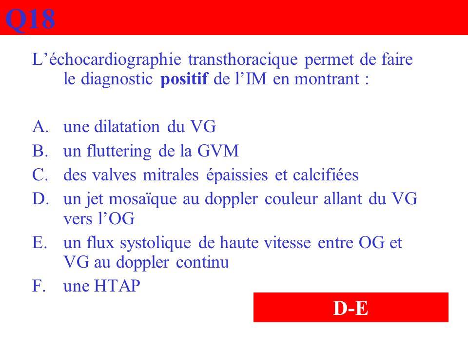 Q18 Léchocardiographie transthoracique permet de faire le diagnostic positif de lIM en montrant : A.une dilatation du VG B.un fluttering de la GVM C.d