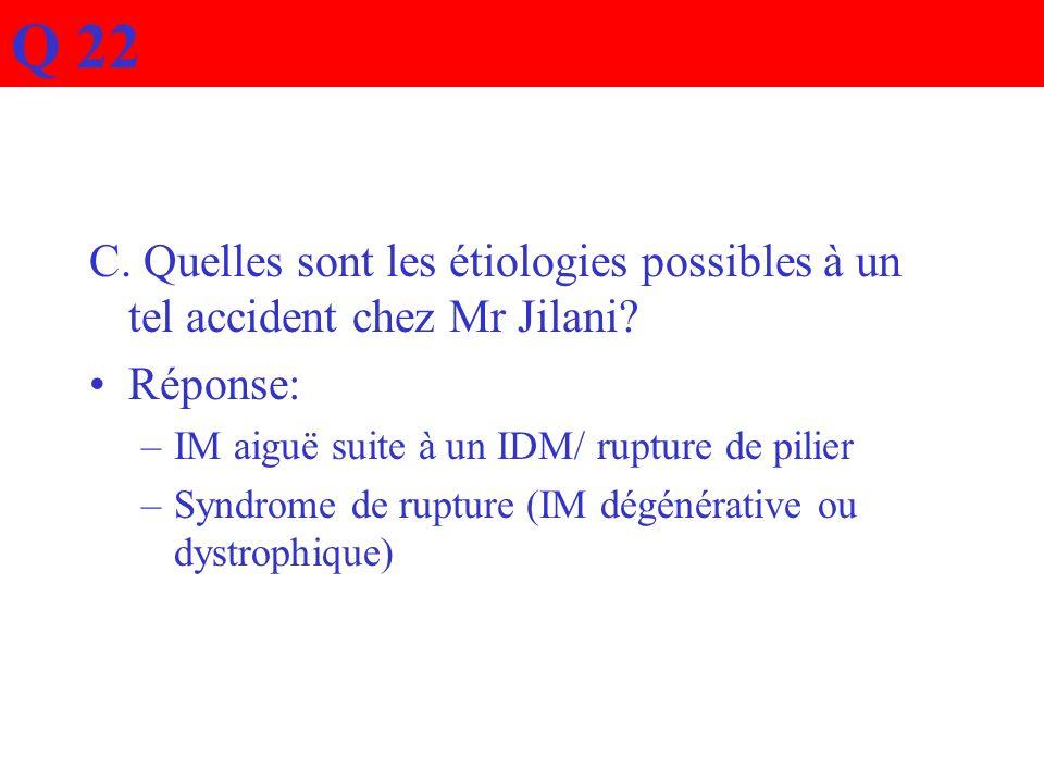 C. Quelles sont les étiologies possibles à un tel accident chez Mr Jilani? Réponse: –IM aiguë suite à un IDM/ rupture de pilier –Syndrome de rupture (