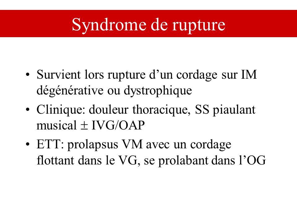 Syndrome de rupture Survient lors rupture dun cordage sur IM dégénérative ou dystrophique Clinique: douleur thoracique, SS piaulant musical IVG/OAP ET