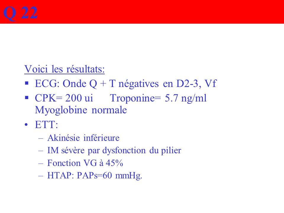Voici les résultats: ECG: Onde Q + T négatives en D2-3, Vf CPK= 200 ui Troponine= 5.7 ng/ml Myoglobine normale ETT: –Akinésie inférieure –IM sévère pa