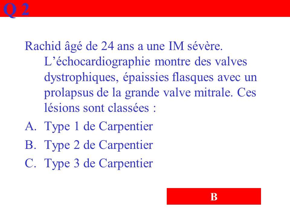 Q 2 Rachid âgé de 24 ans a une IM sévère. Léchocardiographie montre des valves dystrophiques, épaissies flasques avec un prolapsus de la grande valve