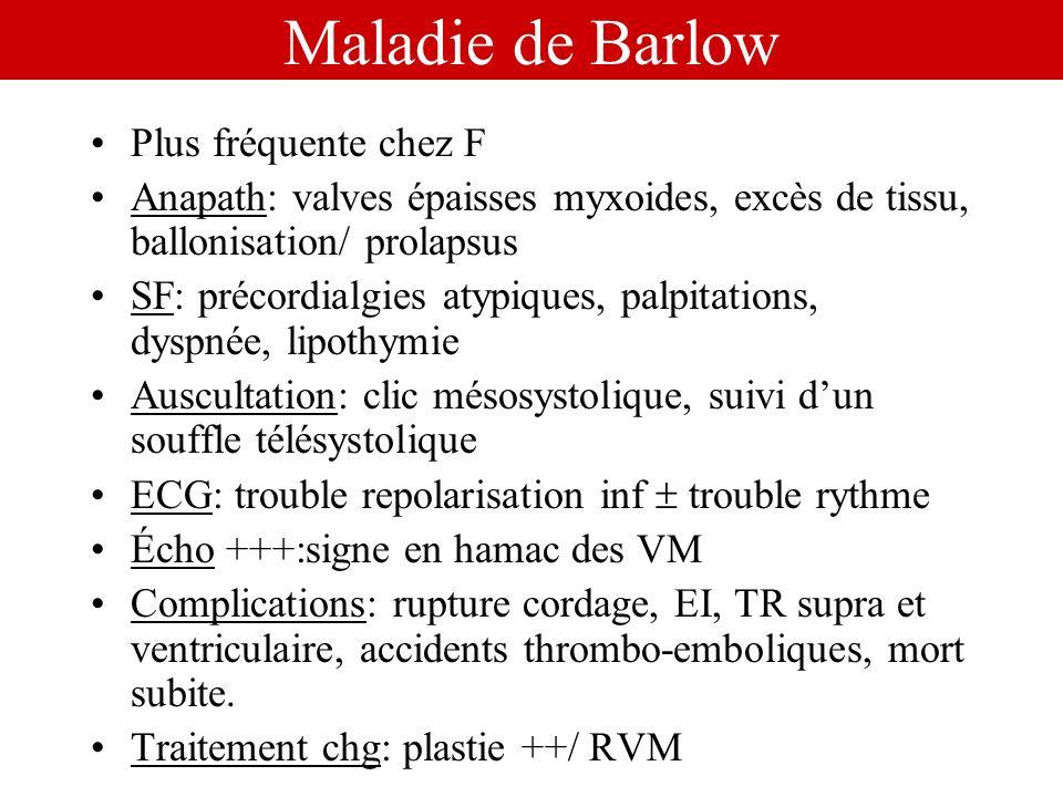 Maladie de Barlow Plus fréquente chez F Anapath: valves épaisses myxoides, excès de tissu, ballonisation/ prolapsus SF: précordialgies atypiques, palp