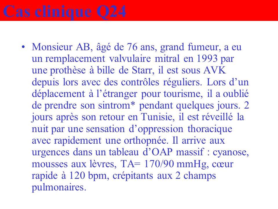 Cas clinique Q24 Monsieur AB, âgé de 76 ans, grand fumeur, a eu un remplacement valvulaire mitral en 1993 par une prothèse à bille de Starr, il est so