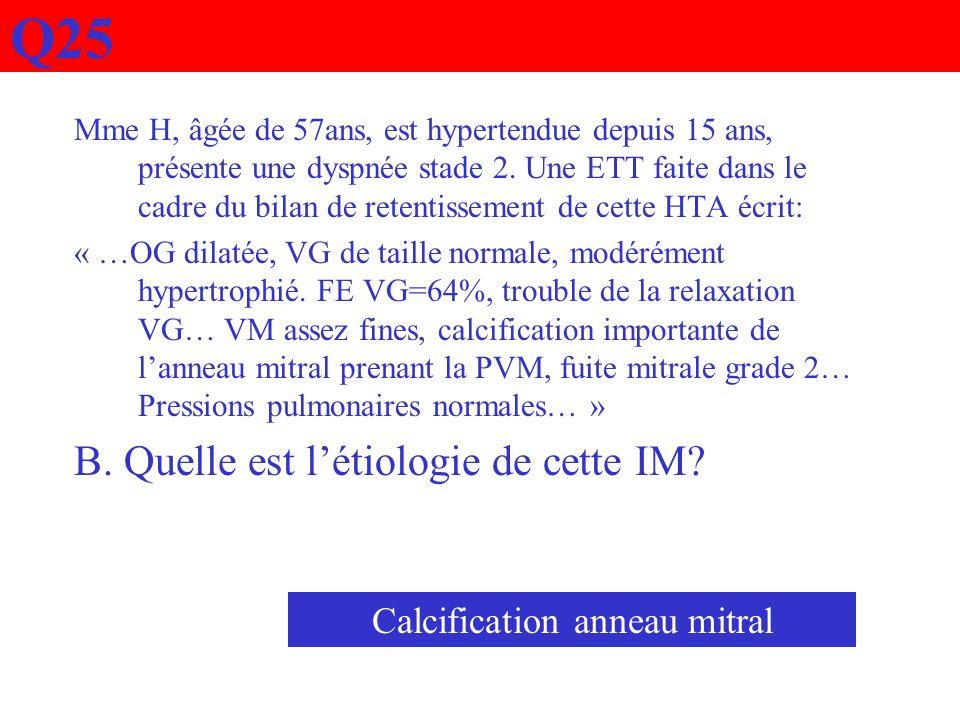 Q25 Mme H, âgée de 57ans, est hypertendue depuis 15 ans, présente une dyspnée stade 2. Une ETT faite dans le cadre du bilan de retentissement de cette