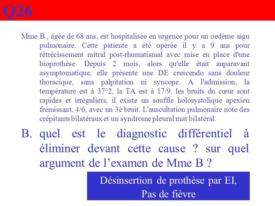 Q26 Mme B., âgée de 68 ans, est hospitalisée en urgence pour un oedème aigu pulmonaire. Cette patiente a été opérée il y a 9 ans pour rétrécissement m