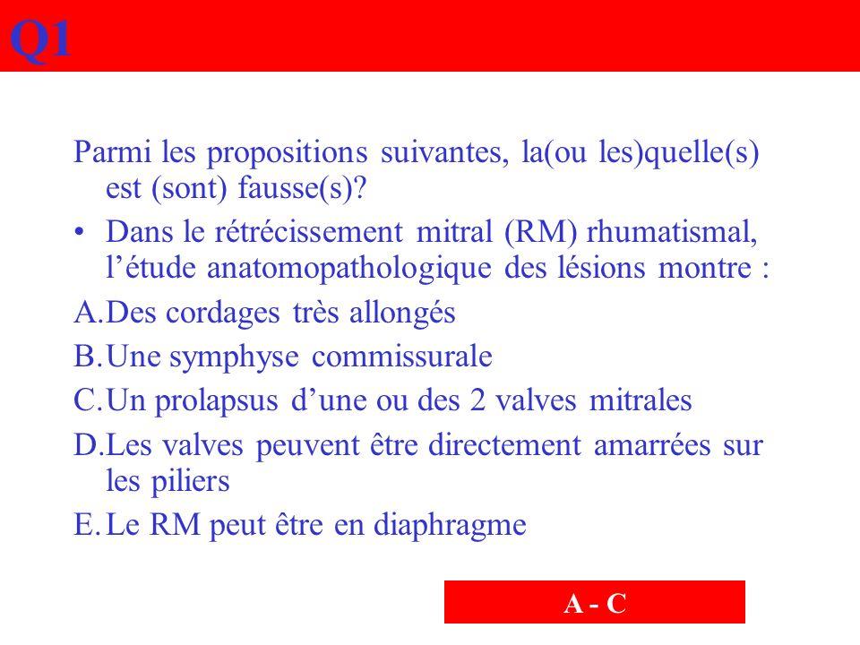 Q1 Parmi les propositions suivantes, la(ou les)quelle(s) est (sont) fausse(s)? Dans le rétrécissement mitral (RM) rhumatismal, létude anatomopathologi