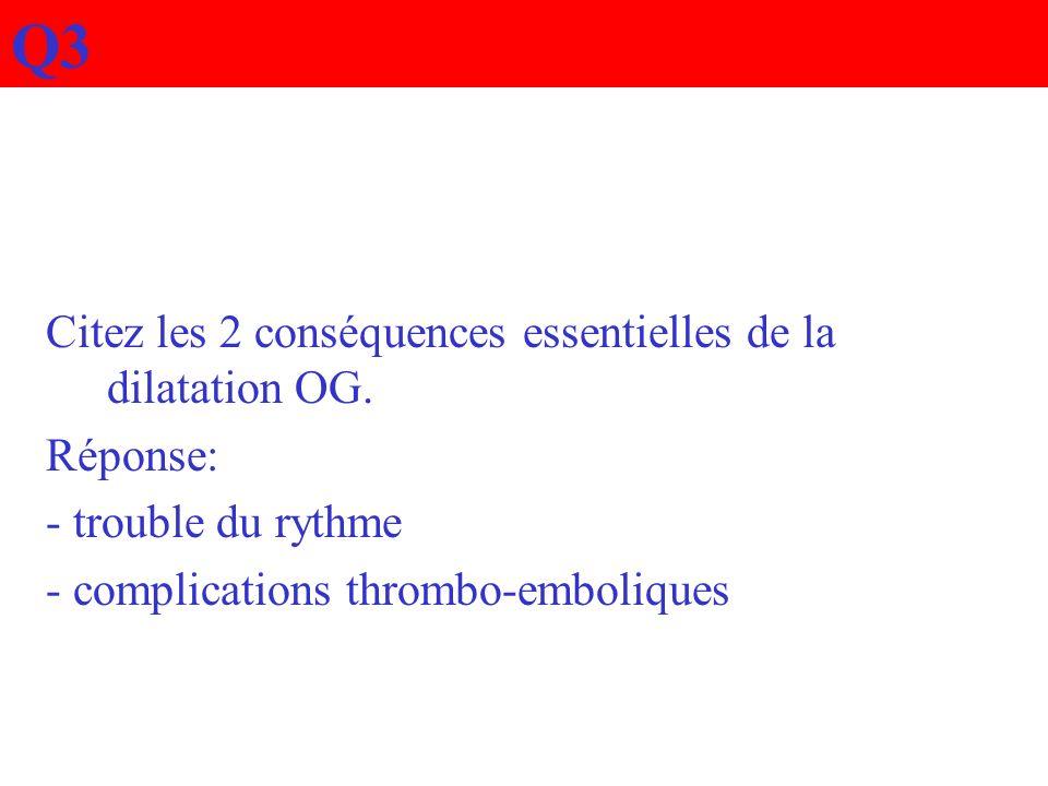 Q3 Citez les 2 conséquences essentielles de la dilatation OG. Réponse: - trouble du rythme - complications thrombo-emboliques