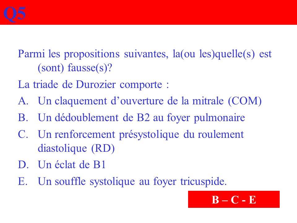 Q5 Parmi les propositions suivantes, la(ou les)quelle(s) est (sont) fausse(s)? La triade de Durozier comporte : A.Un claquement douverture de la mitra