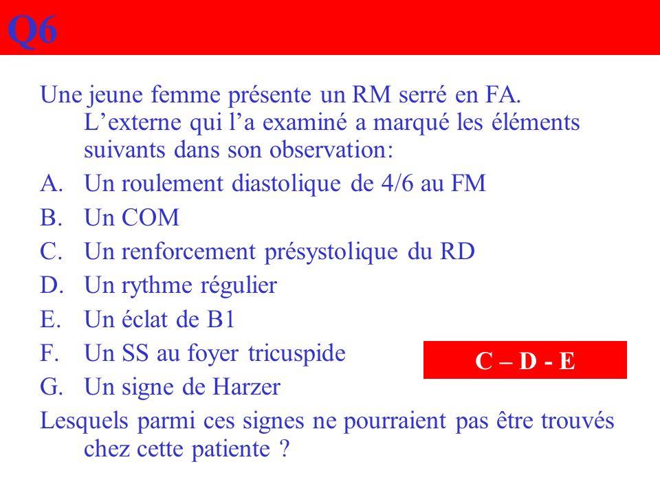 Q6 Une jeune femme présente un RM serré en FA. Lexterne qui la examiné a marqué les éléments suivants dans son observation: A.Un roulement diastolique