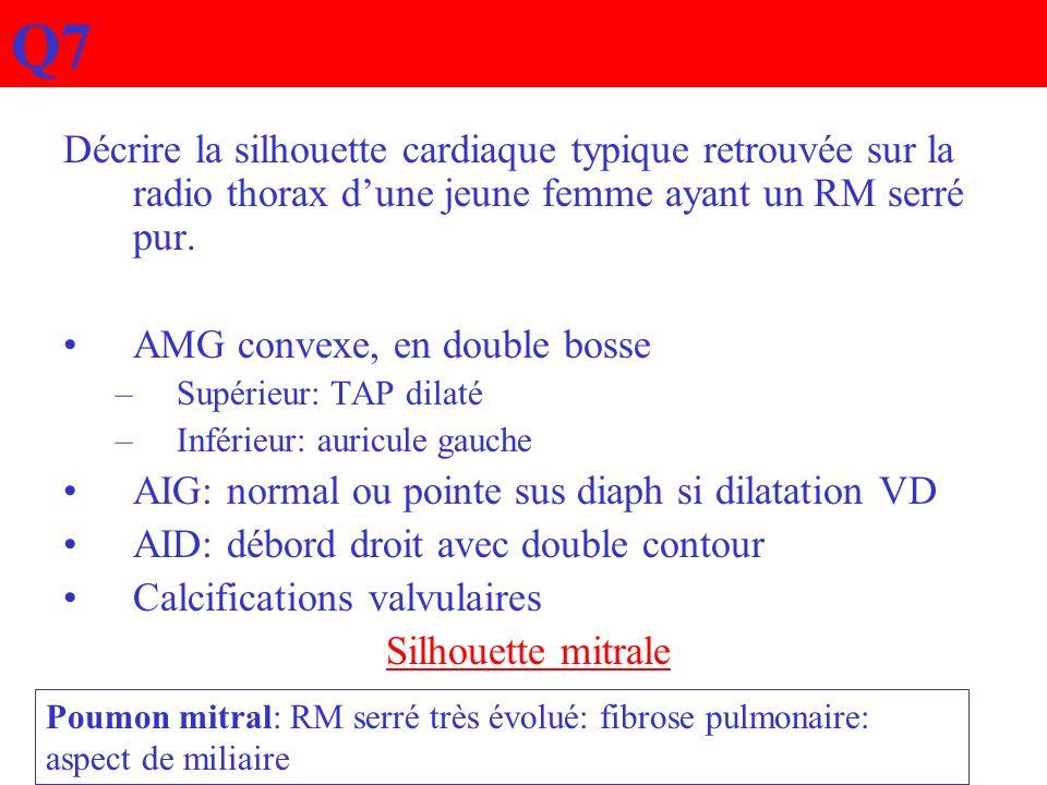 Q7 Décrire la silhouette cardiaque typique retrouvée sur la radio thorax dune jeune femme ayant un RM serré pur. AMG convexe, en double bosse –Supérie