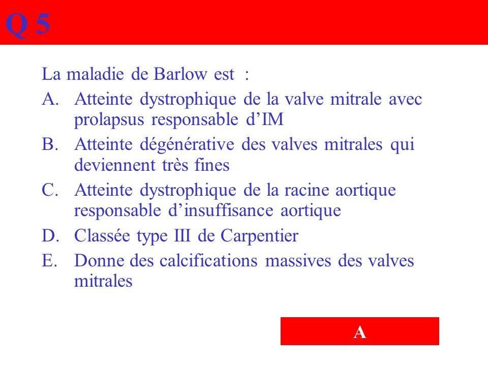 Q 5 La maladie de Barlow est : A.Atteinte dystrophique de la valve mitrale avec prolapsus responsable dIM B.Atteinte dégénérative des valves mitrales