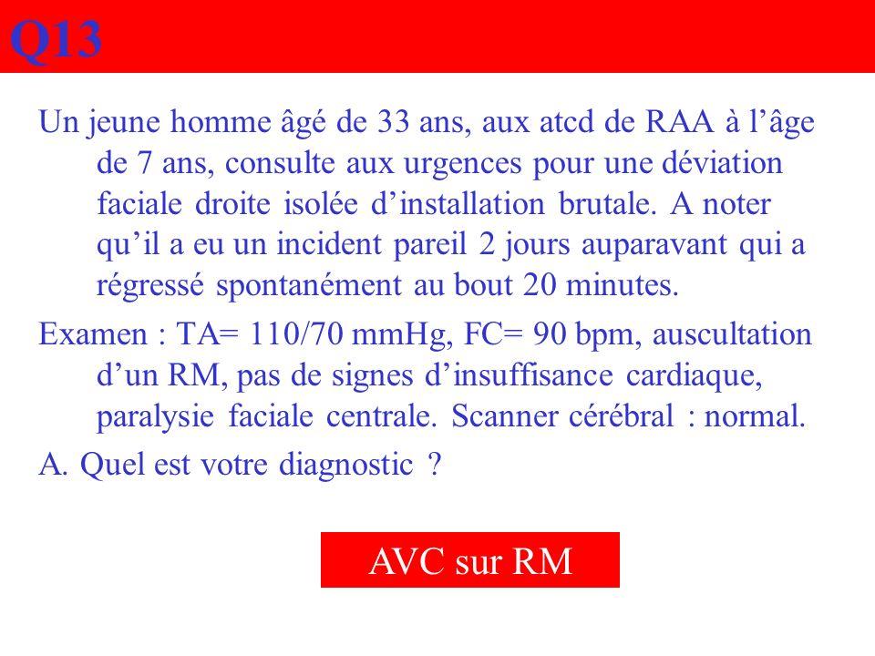 Q13 Un jeune homme âgé de 33 ans, aux atcd de RAA à lâge de 7 ans, consulte aux urgences pour une déviation faciale droite isolée dinstallation brutal