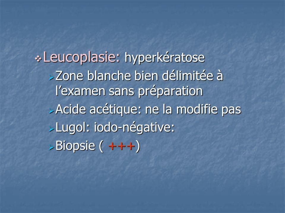 Leucoplasie: hyperkératose Leucoplasie: hyperkératose Zone blanche bien délimitée à lexamen sans préparation Zone blanche bien délimitée à lexamen san