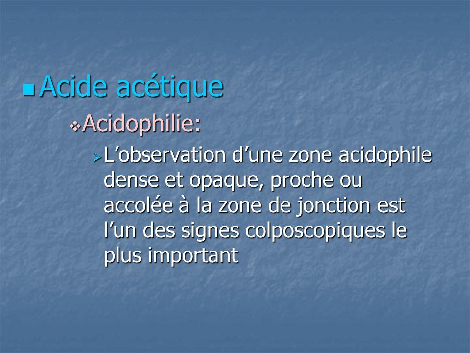 Acide acétique Acide acétique Acidophilie: Acidophilie: Lobservation dune zone acidophile dense et opaque, proche ou accolée à la zone de jonction est