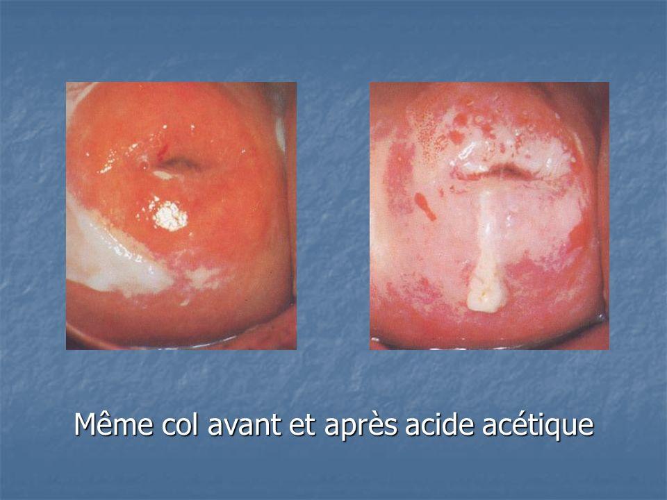 Même col avant et après acide acétique