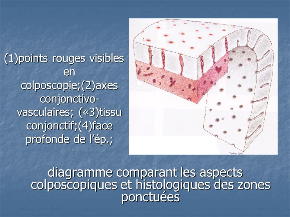 diagramme comparant les aspects colposcopiques et histologiques des zones ponctuées (1)points rouges visibles en colposcopie;(2)axes conjonctivo- vasc