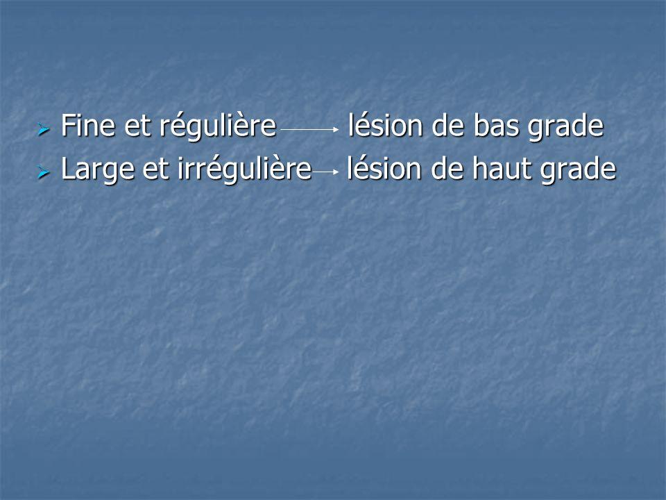 Fine et régulière lésion de bas grade Fine et régulière lésion de bas grade Large et irrégulière lésion de haut grade Large et irrégulière lésion de h