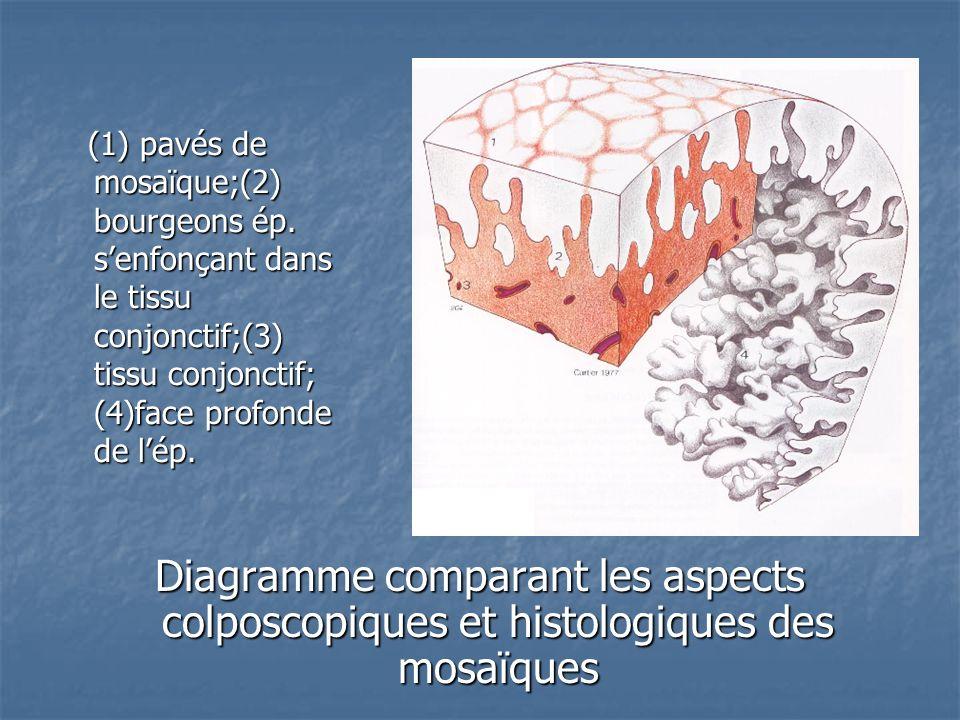 (1) pavés de mosaïque;(2) bourgeons ép. senfonçant dans le tissu conjonctif;(3) tissu conjonctif; (4)face profonde de lép. (1) pavés de mosaïque;(2) b