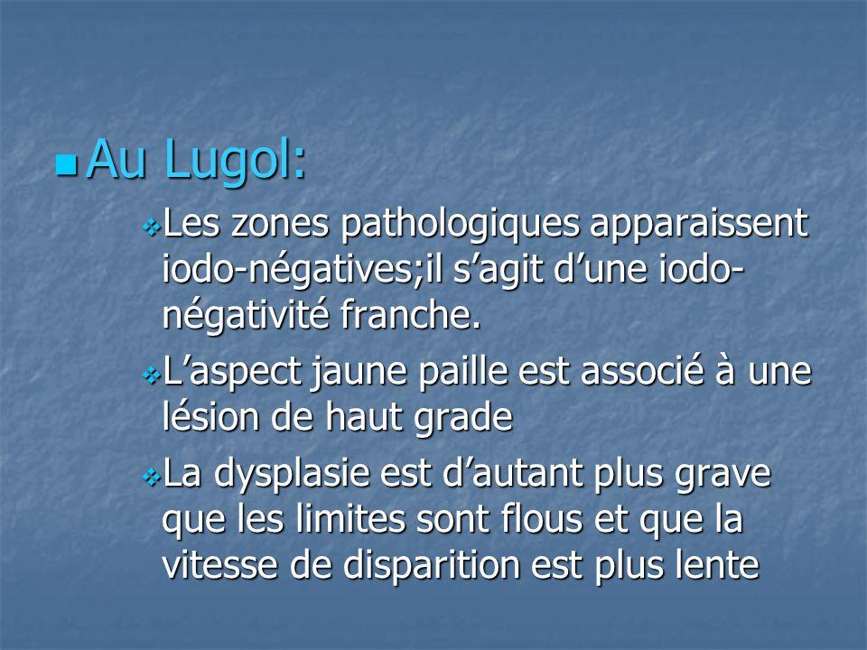 Au Lugol: Au Lugol: Les zones pathologiques apparaissent iodo-négatives;il sagit dune iodo- négativité franche. Les zones pathologiques apparaissent i