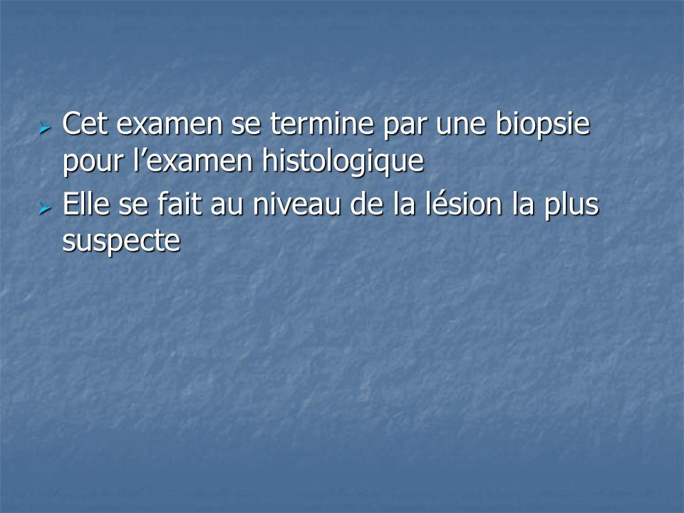 Cet examen se termine par une biopsie pour lexamen histologique Cet examen se termine par une biopsie pour lexamen histologique Elle se fait au niveau