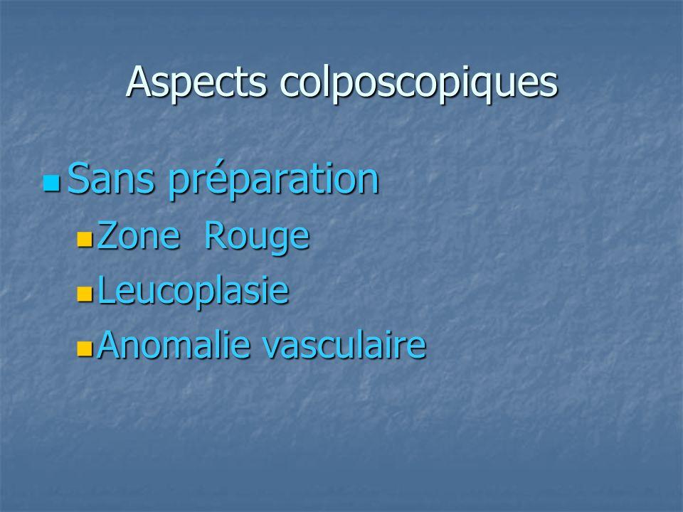 Aspects colposcopiques Sans préparation Sans préparation Zone Rouge Zone Rouge Leucoplasie Leucoplasie Anomalie vasculaire Anomalie vasculaire