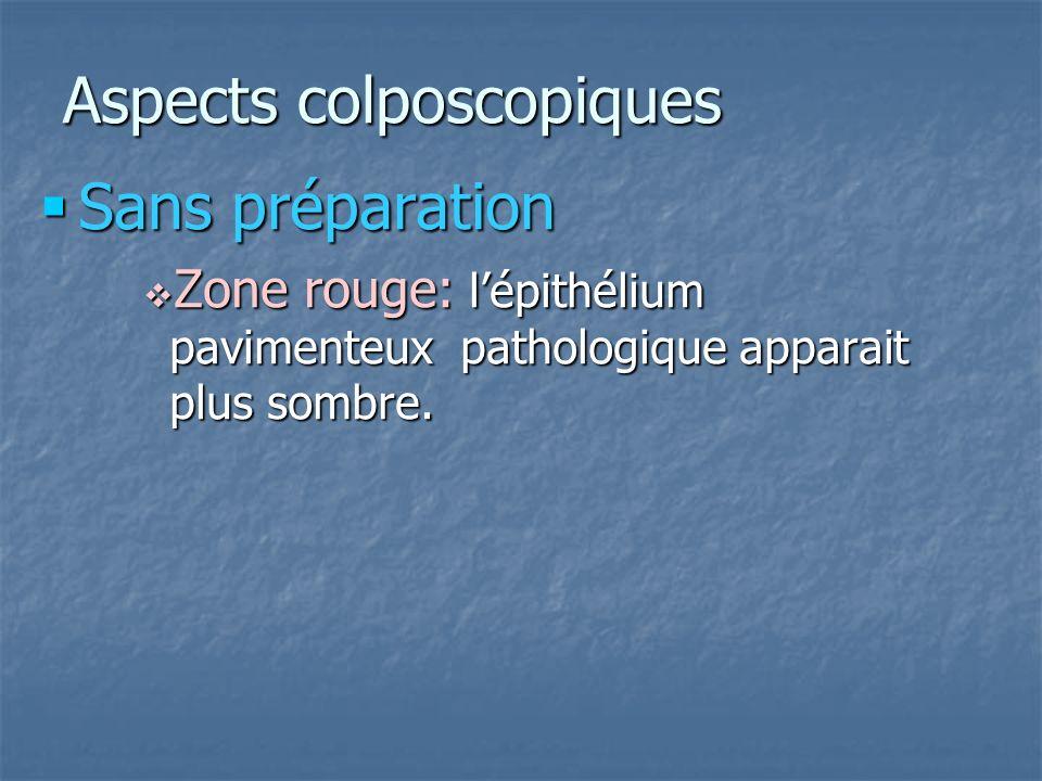 Aspects colposcopiques Sans préparation Sans préparation Zone rouge: lépithélium pavimenteux pathologique apparait plus sombre. Zone rouge: lépithéliu
