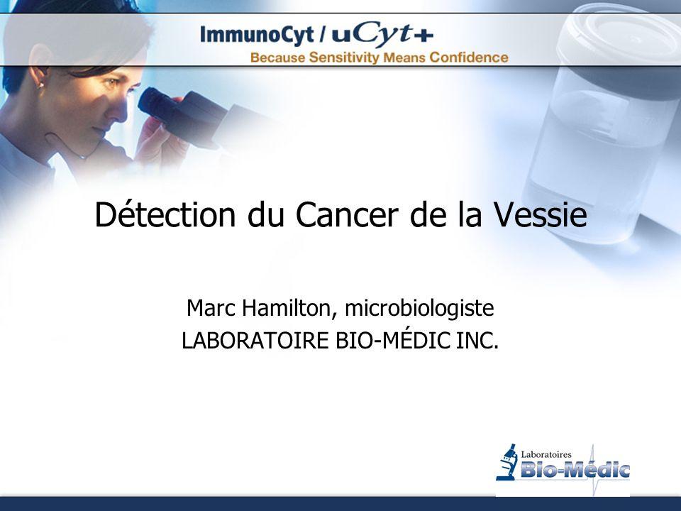 Plan de la Présentation Cancer de la vessie Taux de survie Facteurs de risque Procédure de détection Attentes des cliniciens Méthodes de diagnostic uCyt+ Procédure Résultats Utilisations