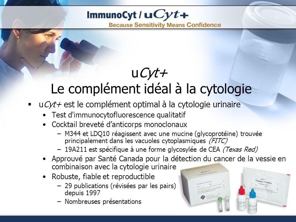 uCyt+ Le complément idéal à la cytologie uCyt+ est le complément optimal à la cytologie urinaire Test d'immunocytofluorescence qualitatif Cocktail bre