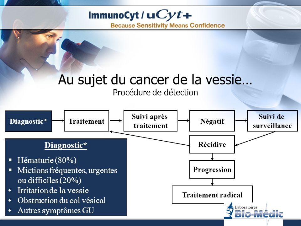 Carcinome des cellules transitionnelles Fond clair uCyt+ Le complément idéal à la cytologie Mêmes cellules: Positive Microscopie à fluorescence