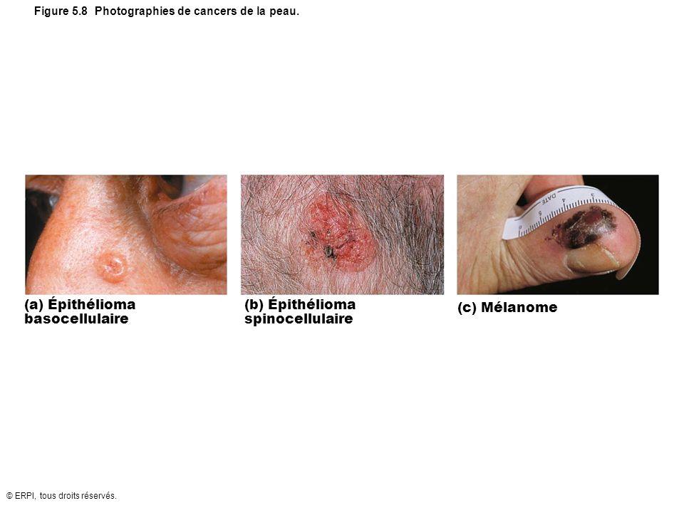 © ERPI, tous droits réservés. Figure 5.8 Photographies de cancers de la peau. (a) Épithélioma basocellulaire (b) Épithélioma spinocellulaire (c) Mélan