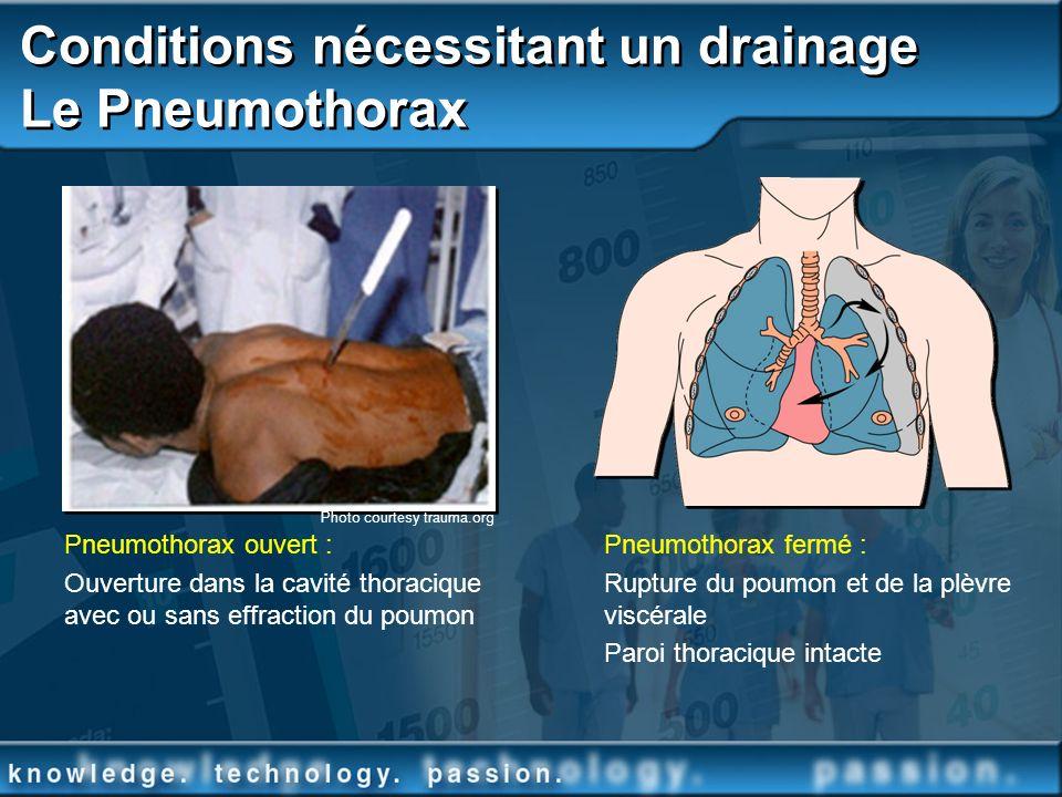 Conditions nécessitant un drainage Le Pneumothorax Photo courtesy trauma.org Pneumothorax ouvert : Ouverture dans la cavité thoracique avec ou sans ef