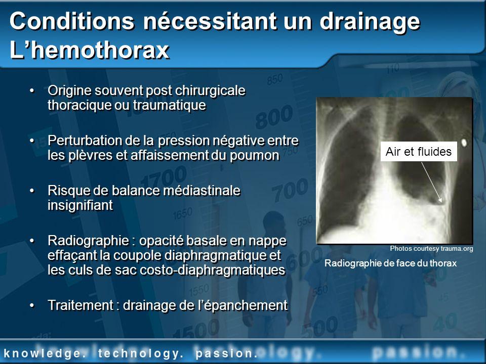 Conditions nécessitant un drainage Lhemothorax Origine souvent post chirurgicale thoracique ou traumatique Perturbation de la pression négative entre