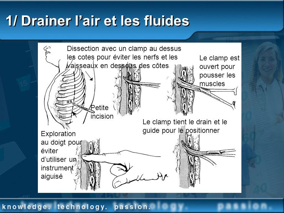 1/ Drainer lair et les fluides Dissection avec un clamp au dessus les cotes pour éviter les nerfs et les vaisseaux en dessous des côtes Le clamp est o