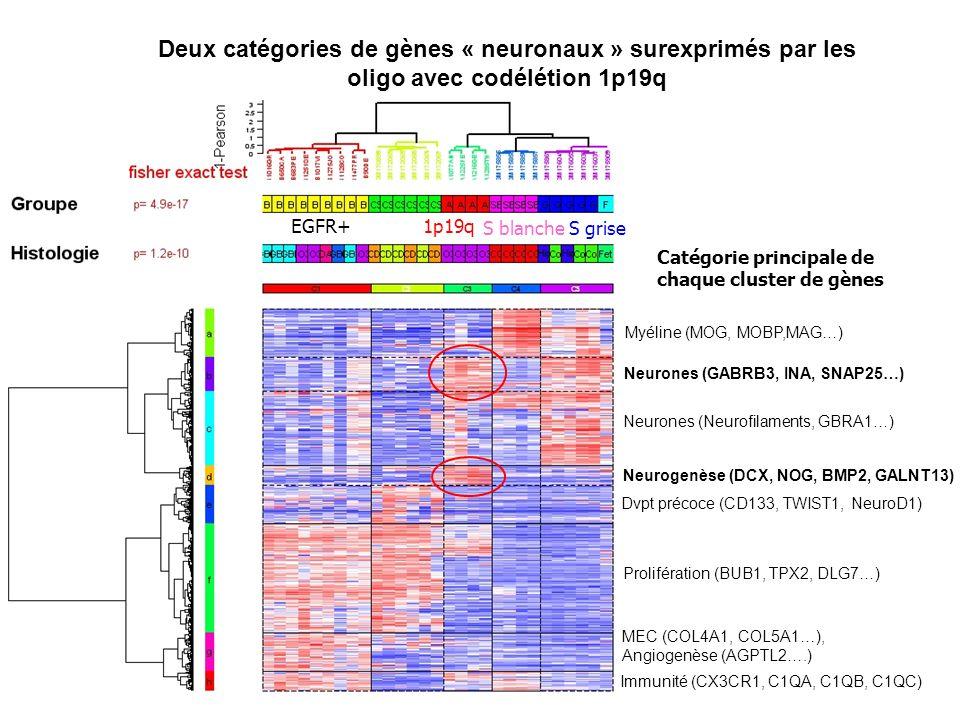 Prolifération (BUB1, TPX2, DLG7…) MEC (COL4A1, COL5A1…), Angiogenèse (AGPTL2….) Immunité (CX3CR1, C1QA, C1QB, C1QC) Dvpt précoce (CD133, TWIST1, Neuro