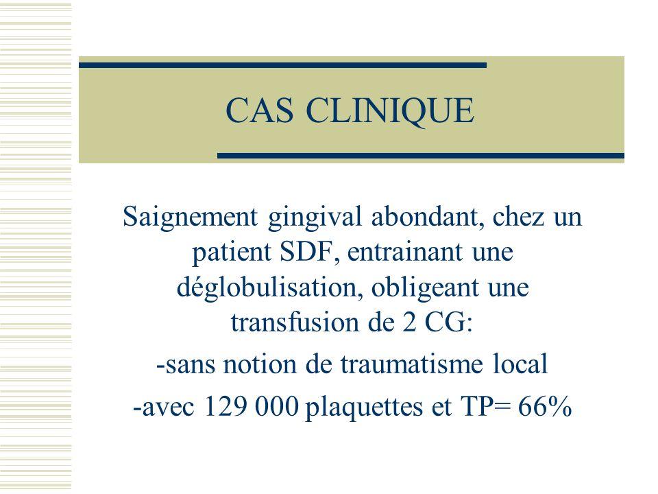CAS CLINIQUE Saignement gingival abondant, chez un patient SDF, entrainant une déglobulisation, obligeant une transfusion de 2 CG: -sans notion de tra