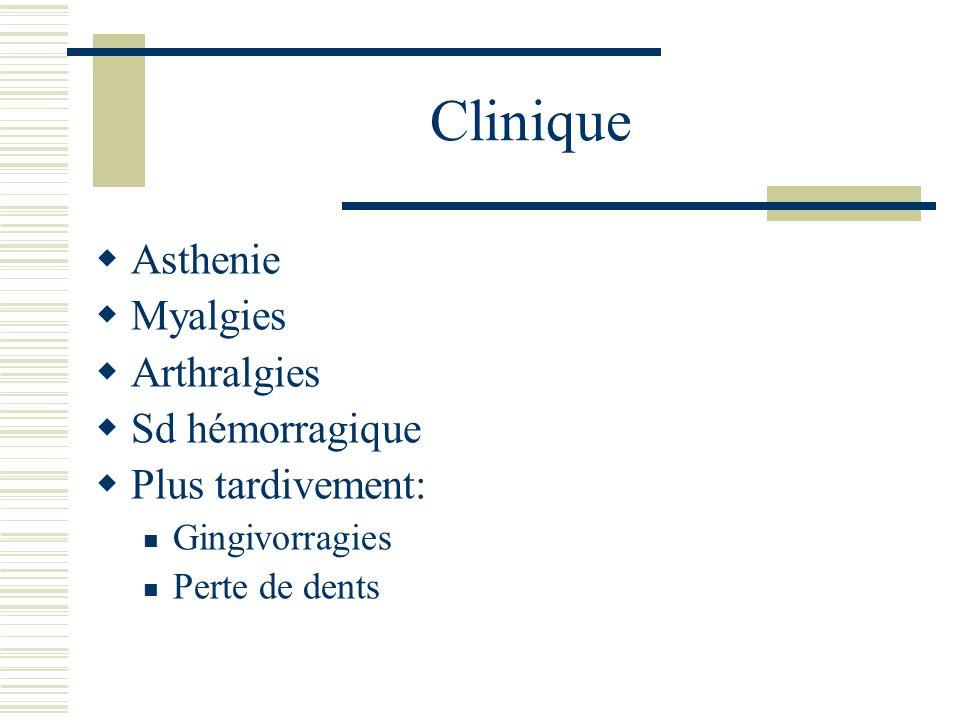Clinique Asthenie Myalgies Arthralgies Sd hémorragique Plus tardivement: Gingivorragies Perte de dents