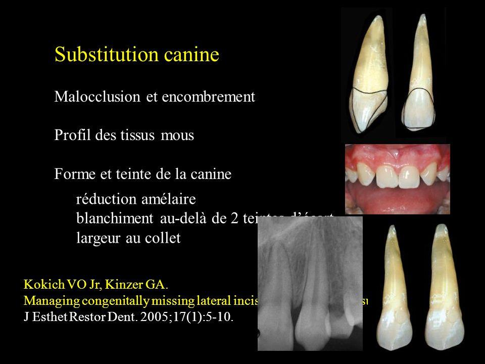 Substitution canine Malocclusion et encombrement Profil des tissus mous Forme et teinte de la canine Kokich VO Jr, Kinzer GA. Managing congenitally mi