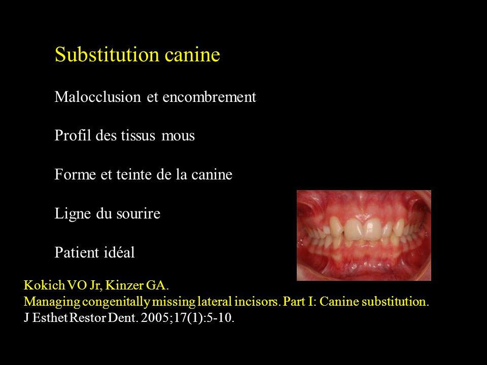 Substitution canine Malocclusion et encombrement Profil des tissus mous Forme et teinte de la canine Ligne du sourire Patient idéal Kokich VO Jr, Kinz
