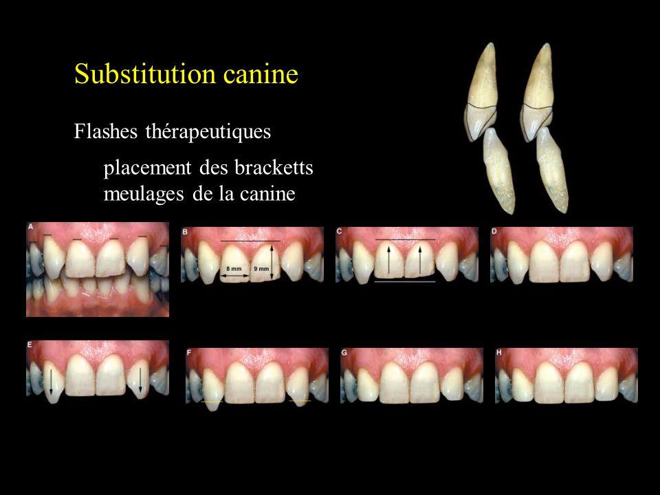 Substitution canine Flashes thérapeutiques Patient idéal placement des bracketts meulages de la canine