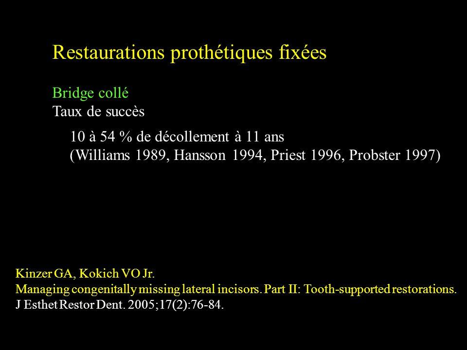 Restaurations prothétiques fixées Bridge collé Taux de succès Critères spécifiques de succès Kinzer GA, Kokich VO Jr. Managing congenitally missing la