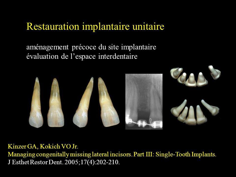 Restauration implantaire unitaire aménagement précoce du site implantaire évaluation de lespace interdentaire Kinzer GA, Kokich VO Jr. Managing congen