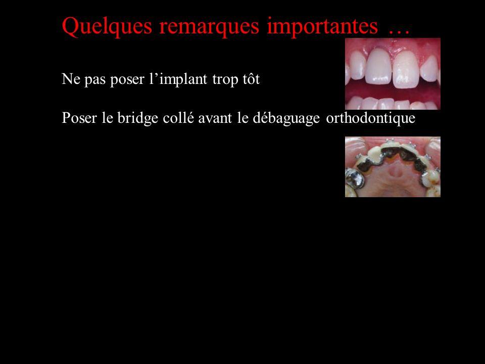 Quelques remarques importantes … Ne pas poser limplant trop tôt Poser le bridge collé avant le débaguage orthodontique
