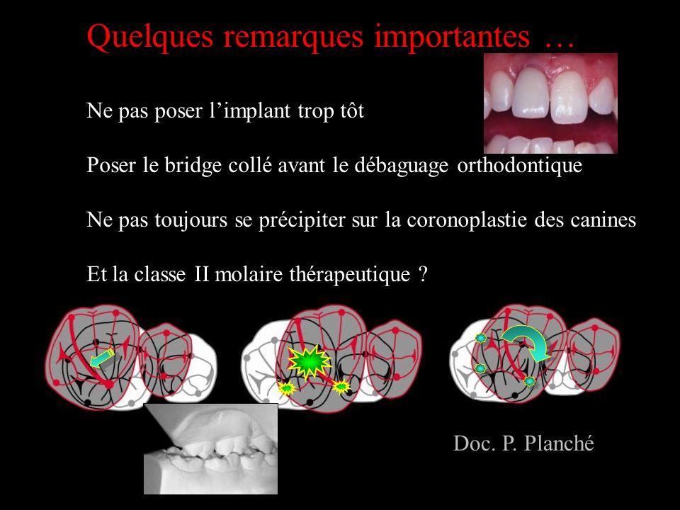 Quelques remarques importantes … Ne pas poser limplant trop tôt Poser le bridge collé avant le débaguage orthodontique Ne pas toujours se précipiter s