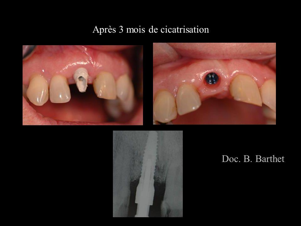 Après 3 mois de cicatrisation Doc. B. Barthet