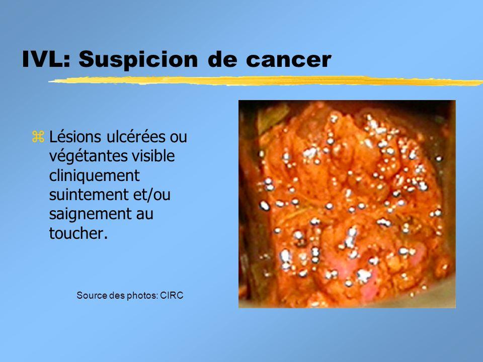 IVL: Suspicion de cancer z Lésions ulcérées ou végétantes visible cliniquement suintement et/ou saignement au toucher. Source des photos: CIRC