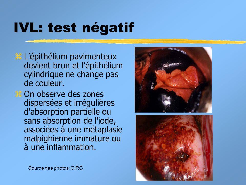 IVL: test négatif zLépithélium pavimenteux devient brun et lépithélium cylindrique ne change pas de couleur. zOn observe des zones dispersées et irrég