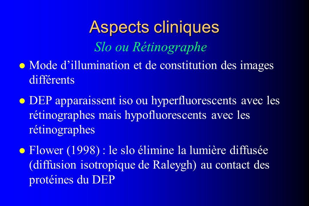 l Mode dillumination et de constitution des images différents l DEP apparaissent iso ou hyperfluorescents avec les rétinographes mais hypofluorescents