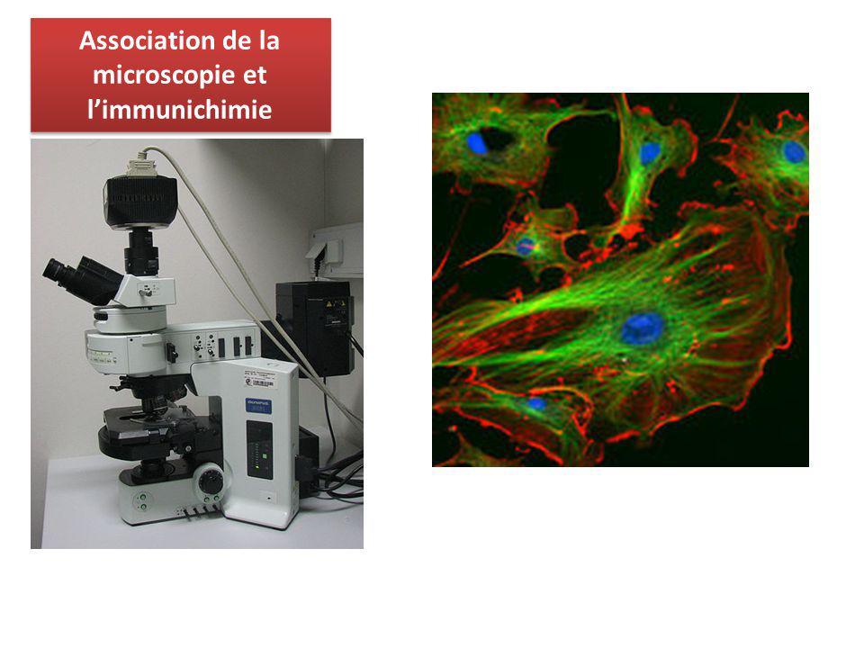 Association de la microscopie et l'immunichimie