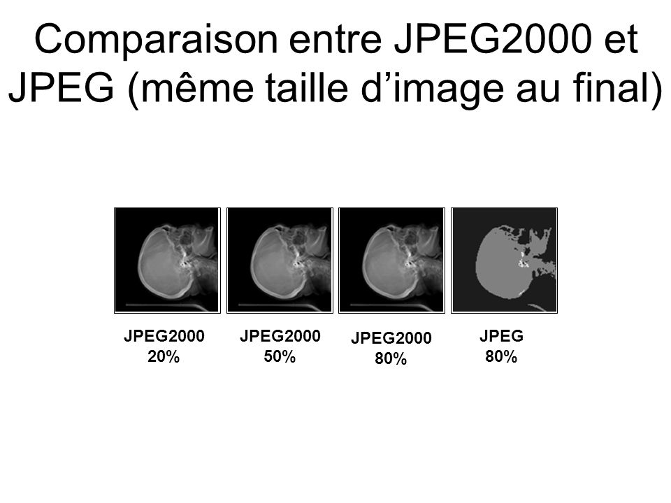 Composants clés du format JPEG2000 Transform –Wavelet –Wavelet packet –Wavelet in tiles Quantization –Scalar Entropy coding –(EBCOT) code once, truncate anywhere –Rate-distortion optimization –Context modeling –Optimized coding order Visual –Weighting –Masking Region of interest (ROI) Lossless color transform Error resilience