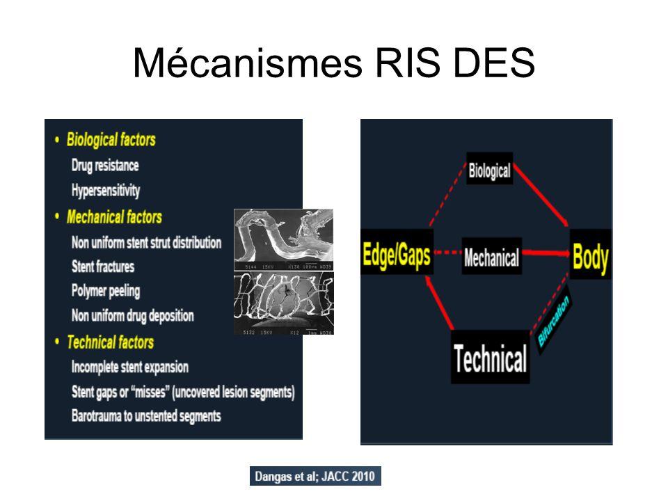 En pratique proposition RIS DES (LIMUS) / analyse mecanisme (IVUS) : focale ++ Type de resténose meca potentiel traitement Focale sous expansion POBA (NC) fracture DES, POBA allergie,HNI DES,DEB Focale/ Edge geo miss DES id (overlap) progression plaque DES dissection DES (PES=SES,pas interet switch) Diffuse in stent res.